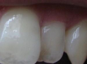 前歯磨き前