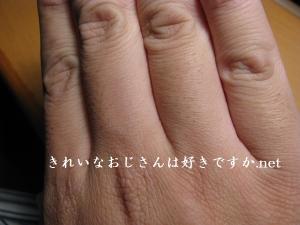 指毛の脱毛